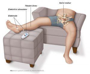 Sl. 1: Draženje tibialnega živca.