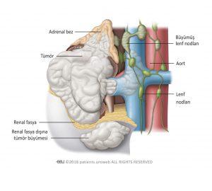 Şekil 4. Evre 4 tümör renal fasyayı aşıp böbrek dışına ve adrenal beze yayılmıştır. Bu evrede bir veya birkaç büyümüş lenf nodu tutulabilir.