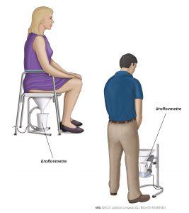 Şekil 2: Erkek ve kadın için yaygın olarak kullanılan bir üroflovmetri tipi.