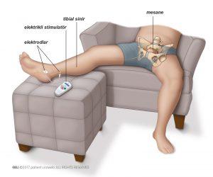 Şekil 1: Tibial sinir stimulasyonu.