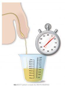 Şekil 2: Evde idrar akış oranının ölçülmesi.