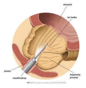 Şekil 2: TURP sırasında rezektoskopla prostat dokusunun bölümleri çıkarılır.