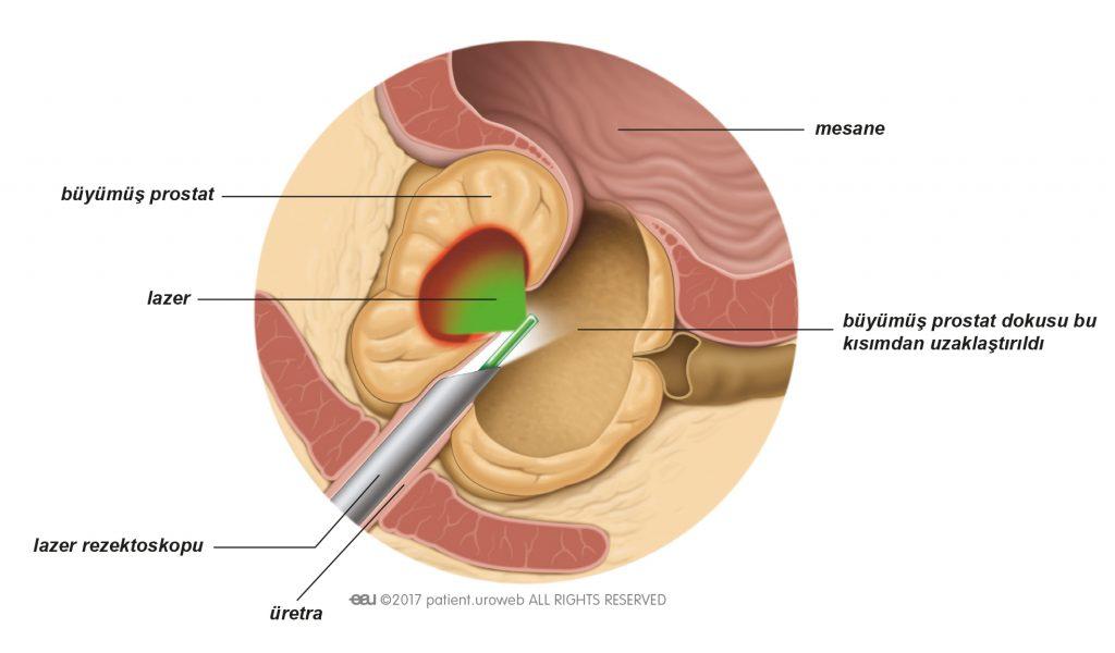 Şekil 2: Lazerden saçılan ısı prostat dokusunu buharlaştırır.