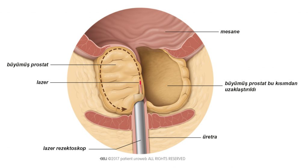 Şekil 2: Prostat dokusu lazer enükleasyon sırasında lazerle kesilir.