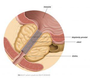 Şekil 1: Prostat stenti idrar akımını artırır.