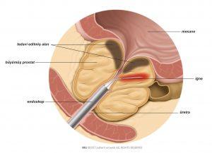 Şekil 1: İğne radyofrekans enerjisi ile prostat dokusunu ısıtır.