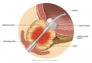 Şekil 1: Mikrodalga antenden yayılan ısı büyümüş prostatın bölümlerini koagüle eder.