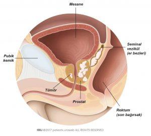 Resim 1: Seminal veziküllere (er bezleri) yayılmış T3 (3. Evre) prostat tümörü.
