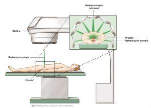 Şekil 1a: Dışardan radyasyon ışını tedavisi ile kanser tedavisi. Şekil 1b: Radyasyon ışınlarının farklı açılarla prostata etkisi.
