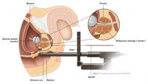 Şekil 2: Brakiterapide radyasyon kaynağı iğnelerin prostata girişi.