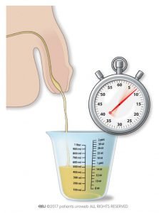 Fig. 1: Measuring the urine flow rate at home.