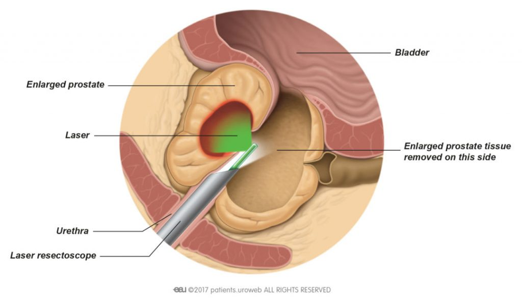 Fig. 2: The heat from the laser vaporises parts of the prostate tissue.