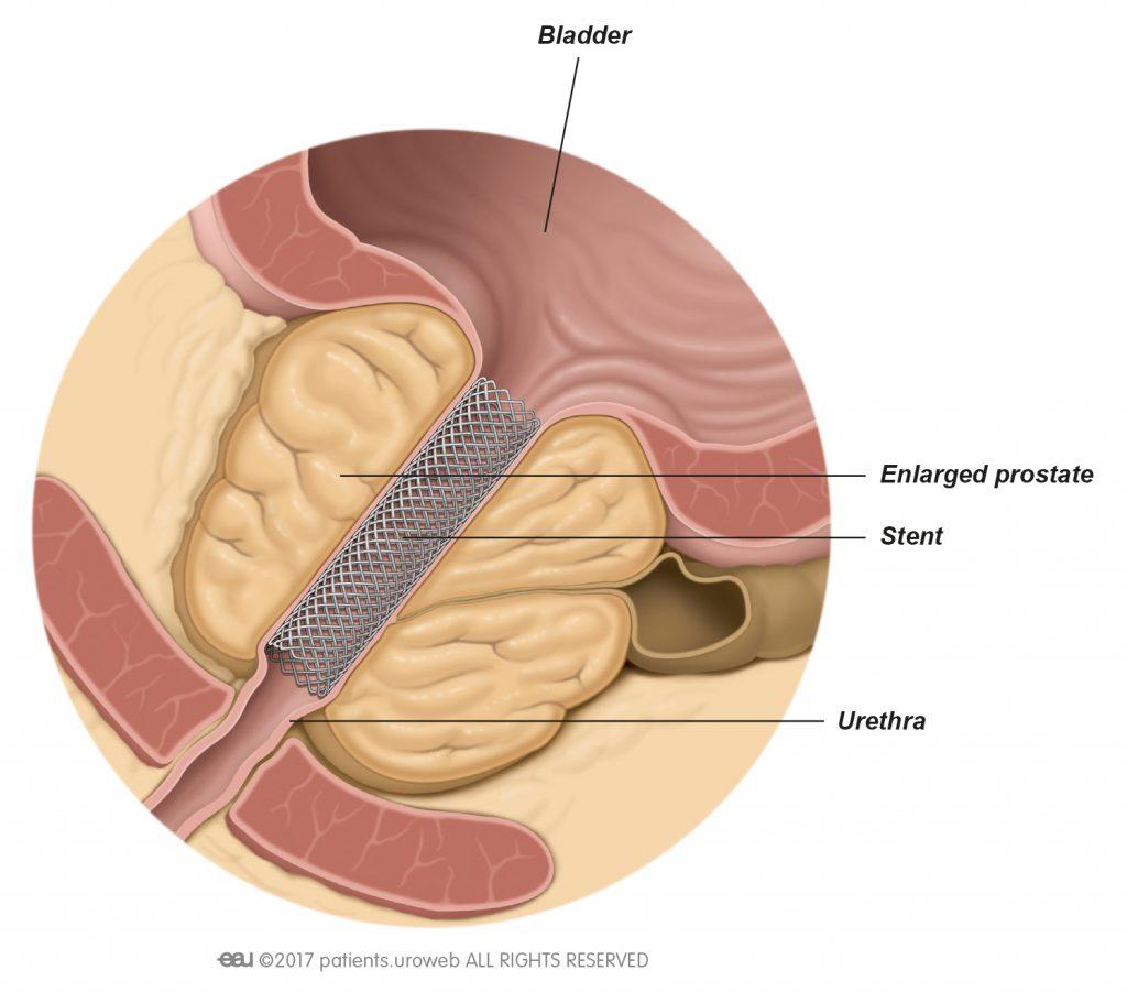 próstata oclusiva bilateral