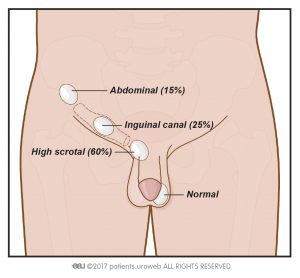 Fig. 1: in cryptorchidism, the testicles fail to descend into the scrotum. Illustration shows the percentage of the testicle position in patients with cryptorchidism.