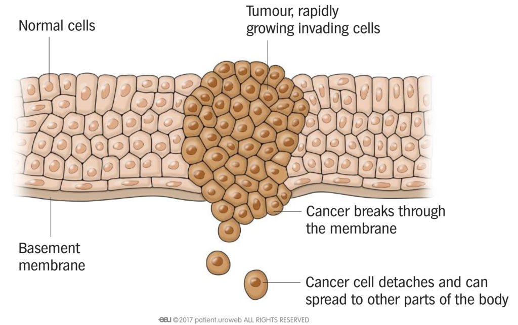 Fig.2: Malignant cancer cells can travel to other parts of the body and become metastatic tumours.