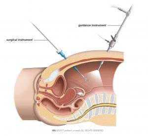 Fig. 1: For laparoscopic surgery the surgeon inserts the surgical instruments through small incisions in the abdomen.