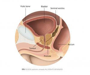 Fig. 1: A T1-prostate tumour is too small to be felt during a digital rectal examination or seen on a scan.
