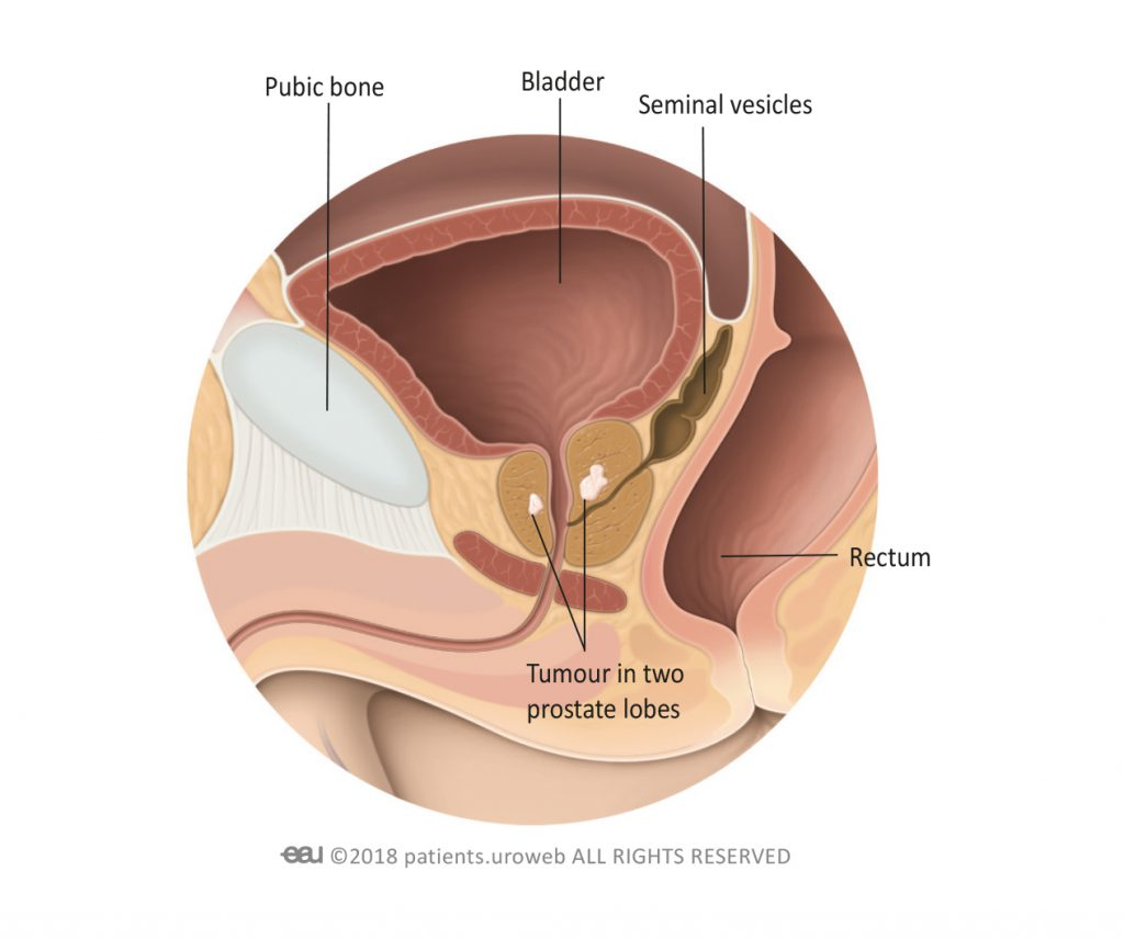 Fig. 2: A T2-prostate tumour is limited to the prostate.