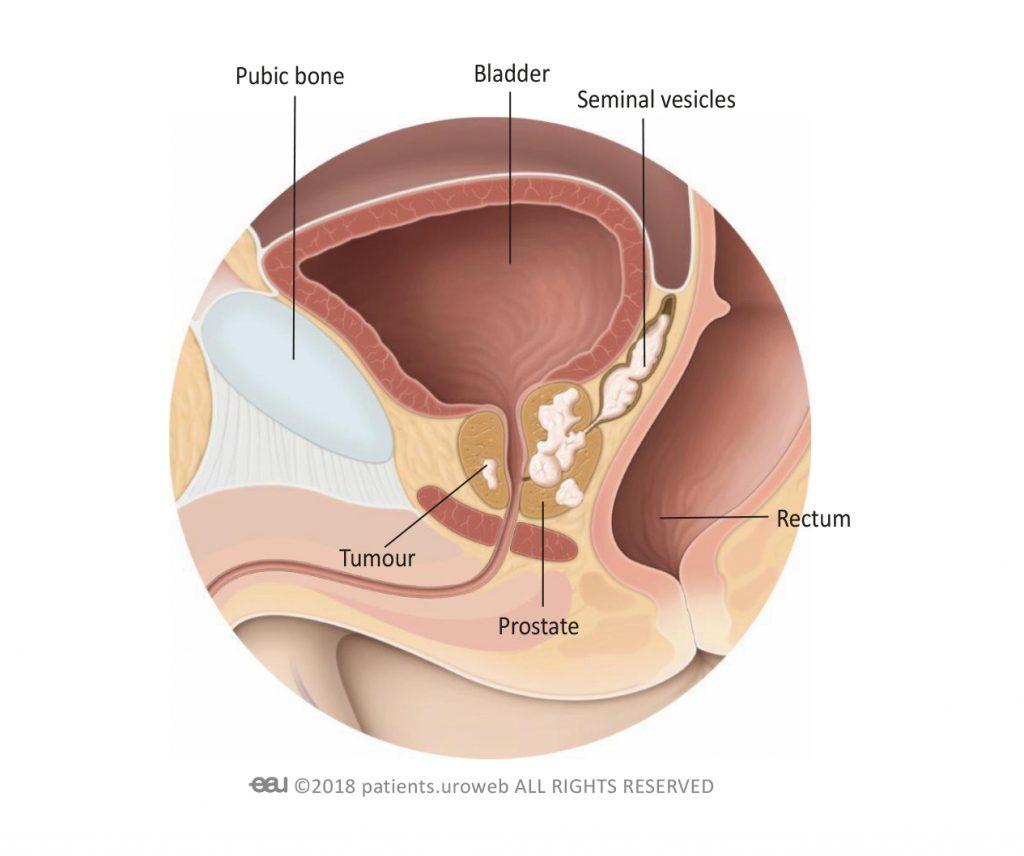 Neoadjuvant treatment of rectal cancer