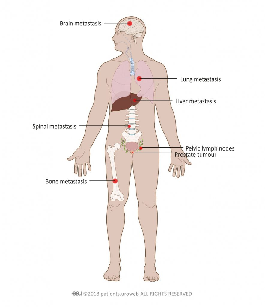 Fig. 5: Metastatic prostate cancer can spread to the bones, spine, lungs, liver, or brain.