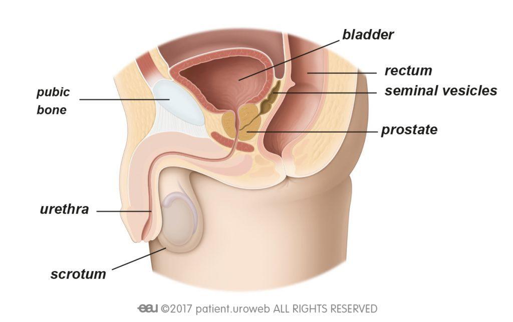 bladder cancer prostate involvement