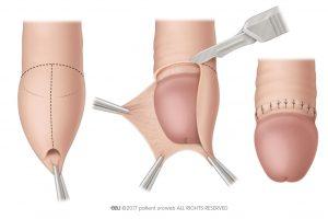 Fig. 2: Circumcision.