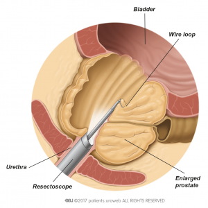 Fig. 2: The resectoscope removes parts of the prostate tissue during TURP