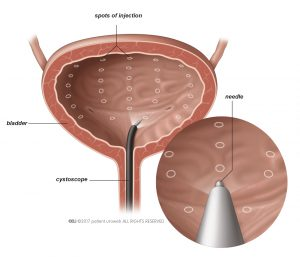 Fig. 1: Botulinum toxin is injected into the bladder wall.