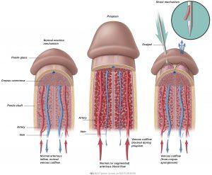 Fig. 1: Shunt procedure.