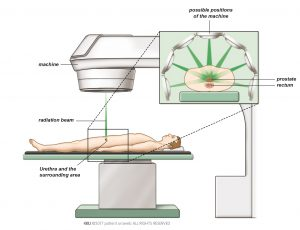 Fig. 3: External beam radiation therapy damages and kills cancer cells.