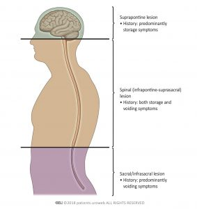 Fig. 2: Patterns of lower urinary tract dysfunction following neurourological disease.