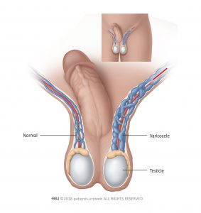 Fig. 1: Varicoceles are usually found in the left side of the scrotum.