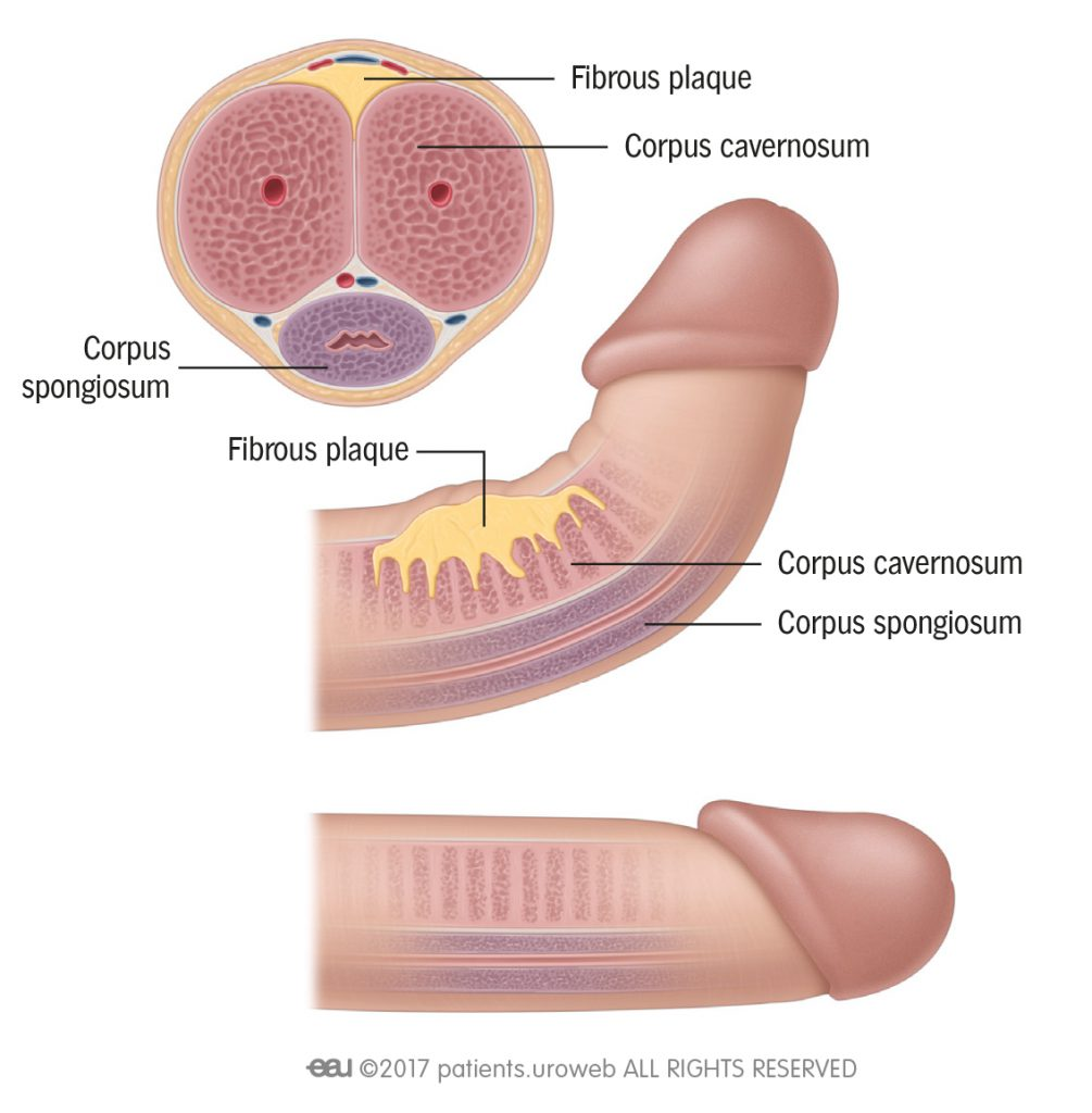 Surgery of the penis and urethra